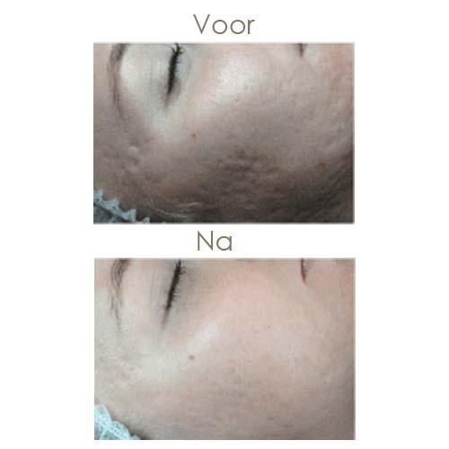 Voor-en-na-acne